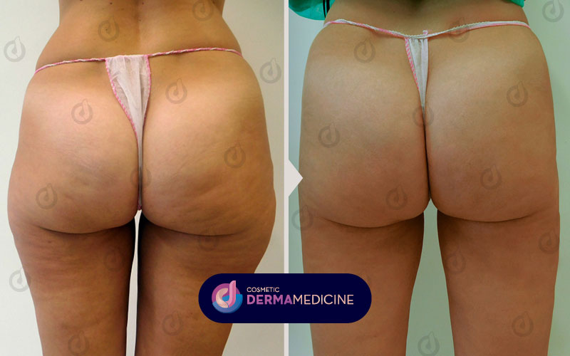 CDM Website Smartlipo Before After 800x500px